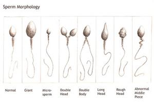 sperm morphology
